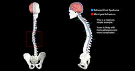 Transition from Ideal to Twisted Spine