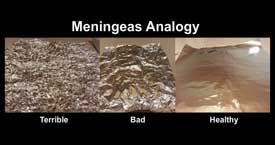 Meninges Analogy